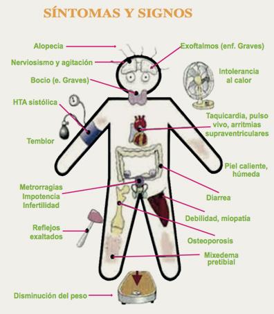 hipo y hipertiroidismo sintomas